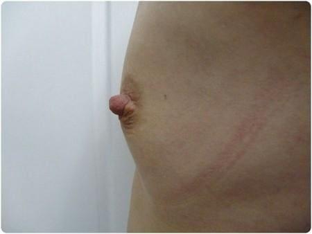 lipomodeling