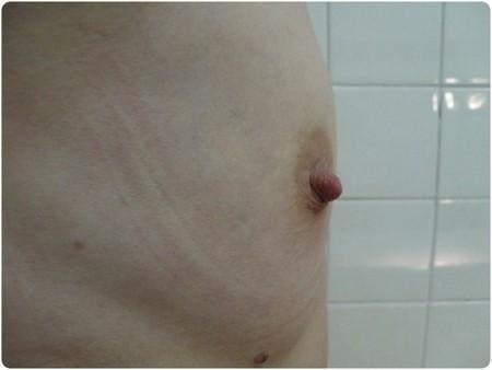 lipomodeling1