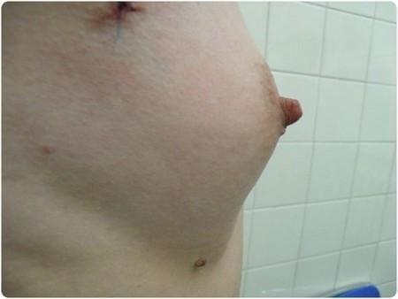 lipomodeling6